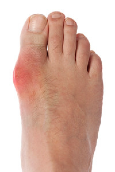 What Causes Gout?