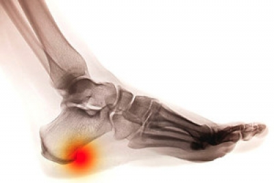 What is the Difference Between a Heel Spur and Plantar Fasciitis?