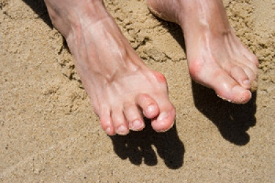 The Difficulties of Having a Hammertoe