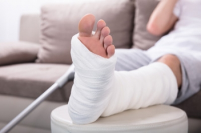 Common Recovery Methods for a Broken Foot