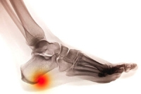 What is a Common Source of Heel Pain?