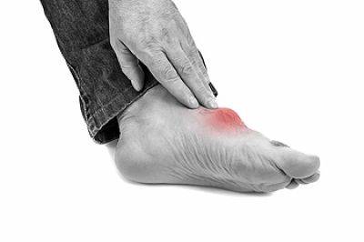 What Can I Do to Manage My Gout?