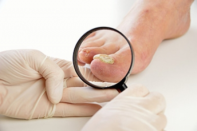 Toenail Fungus is Known to Be Contagious