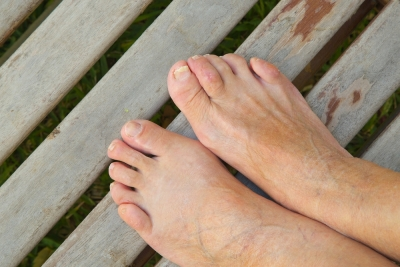 Surgical Treatment of Hammertoes