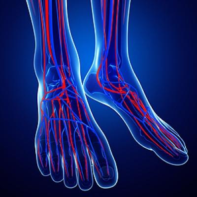 How Does Morton's Neuroma Affect the Feet?