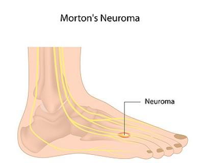 Symptoms of Morton's Neuroma