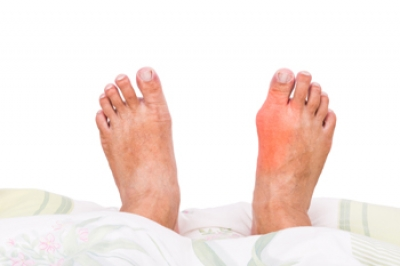 Intense Pain May Accompany Gout