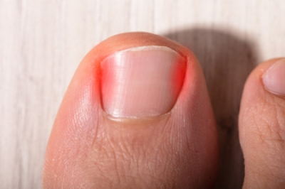 Causes of an Ingrown Toenail