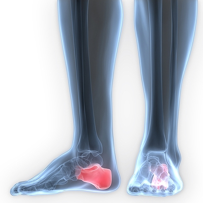Causes of Heel Spurs